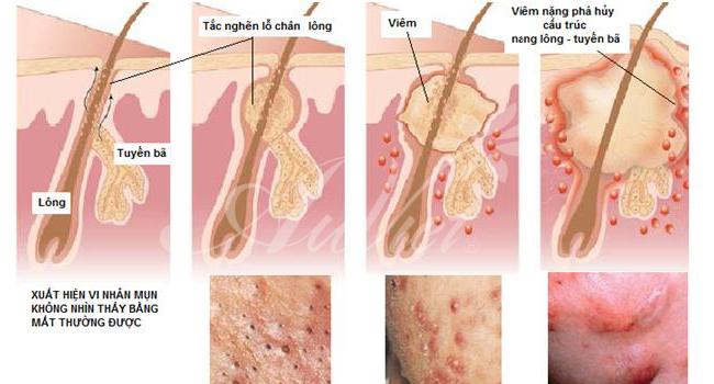 Điều trị mụn hiệu quả - Cơ chế hình thành mụn trên da