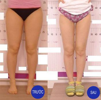 Kết quả giảm béo tại thẩm mỹ Âu Việt